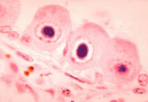 Cytomegalovirus leaves granules inside its host cells called inclusion bodies, pictured here. Photograph from the CDC's Public Health Image Library.